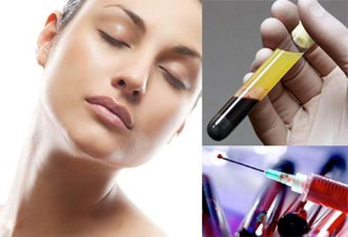 Điều trị da bằng công nghệ cấy tế bào gốc tự thân PRP 4