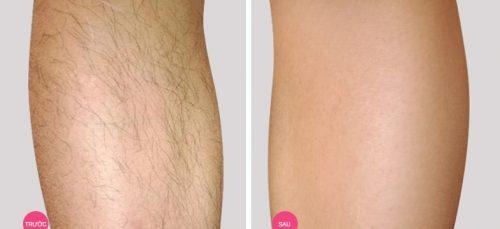 Cách triệt lông chân đảm bảo không mọc lại an toàn hiệu quả 3