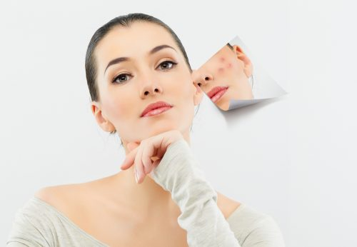 Phi kim trị sẹo nông giúp tái tạo da 2
