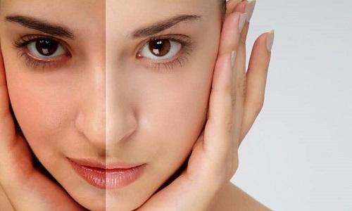 Điều trị tái phục hồi da sau tổn thương 1