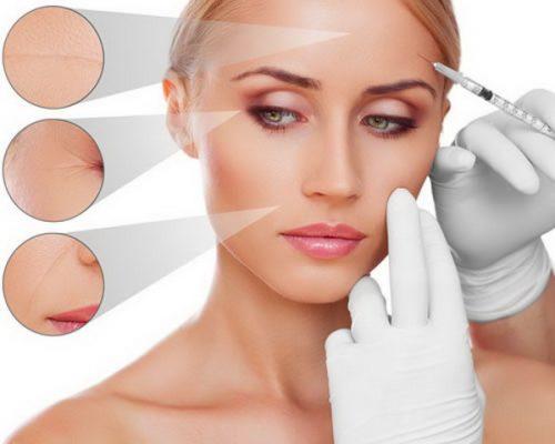 Tiêm trẻ hóa da từ tinh chất làm đầy filler 5