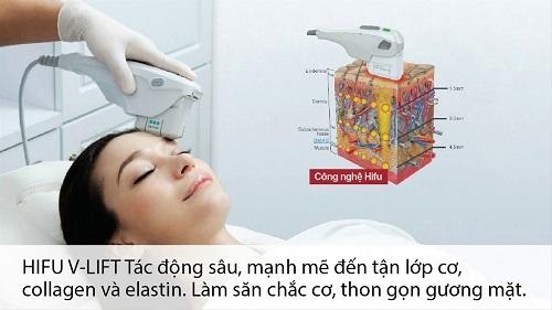 Tác dụng của công nghệ Hifu đối với làn da 2